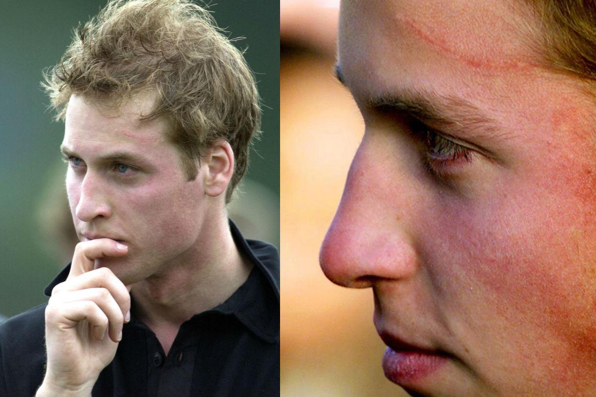 prince-william-harry-potter-scar