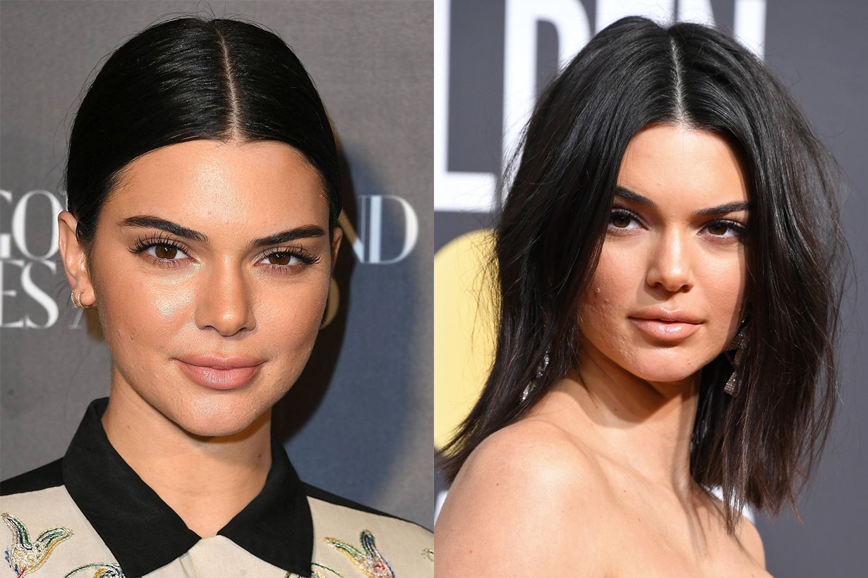 Kendall Jenner Acne